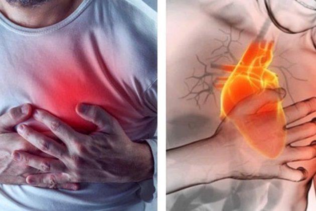 Ataques cardíacos y paros cardíacos