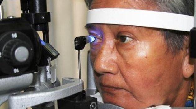 ¿Tienes familiares con glaucoma? Debes hacerte un chequeo de la visión