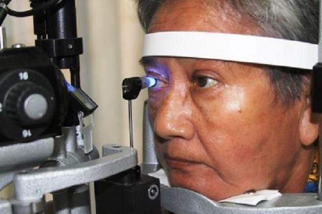 Tienes familiares con glaucoma Debes hacerte un chequeo de la visió