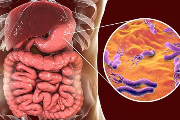 Conoce la bacteria causante del tipo de cáncer más mortal en el Perú