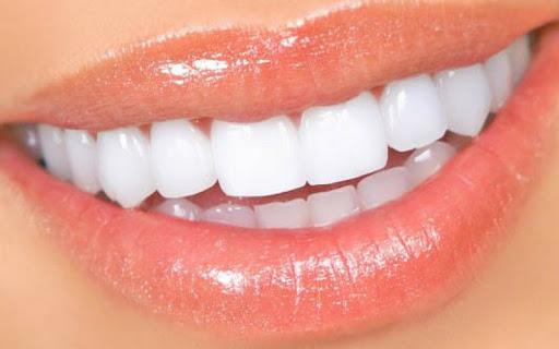 Alimentos que debes evitar para no manchar los dientes